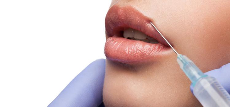 Увеличение губ ( препарат Cybelle) 2400 грн